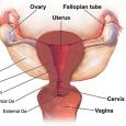 pelvic inflamatory disease