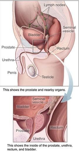 Prostate_img